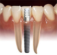 implants4 />Implant for Lower incisor<br><br><br><br>